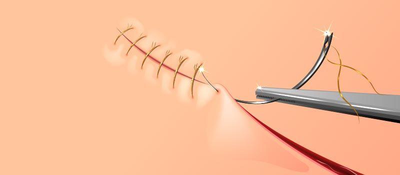 surgical-sutures-glikosorb-nasıl-kullanılır-kullanım-alanları-ameliyat-ipliği-cerrahi